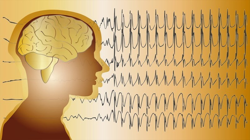 How does epilepsy affect the brain and nervous system?