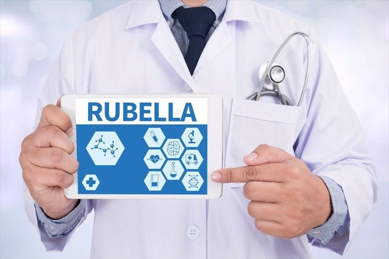 Diagnosing and treating German measles (rubella)