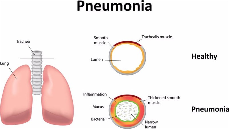 Causes And Types Of Pneumonia
