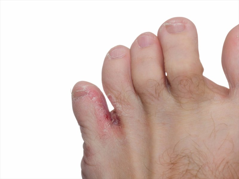 toe crack infection