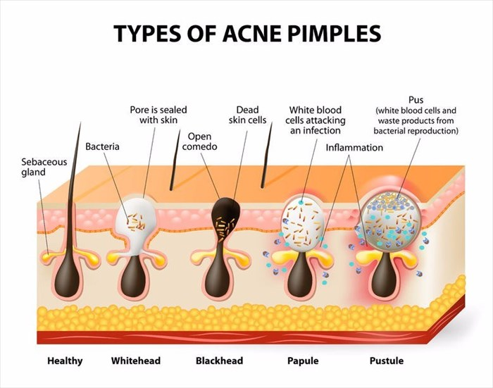 Symptoms and causes of acne