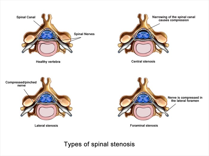 Location and types of spinal stenosis
