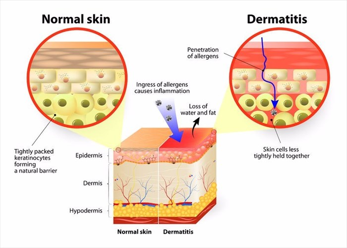 Eczema (Atopic Dermatitis) - The symptoms, causes and other