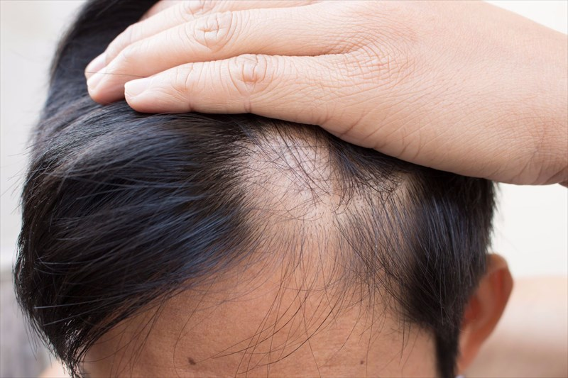 What Commonly Causes Alopecia Areata