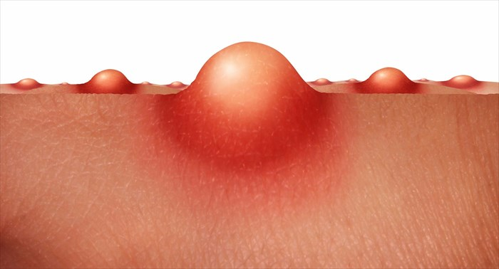 Types and causes of folliculitis