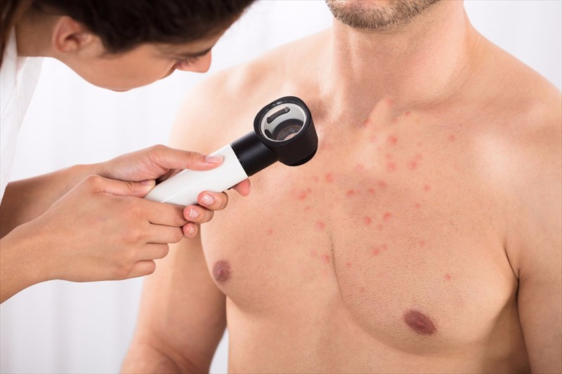 how is folliculitis diagnosed