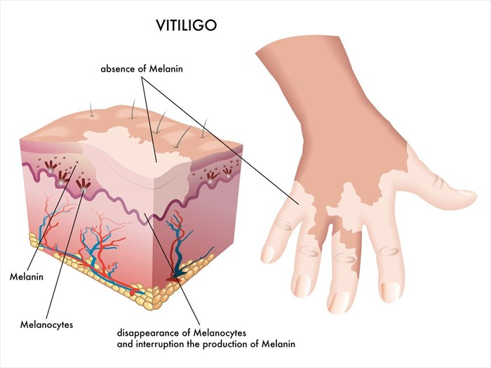 Illustration showing the mechanisms of vitiligo (pigment loss in the skin).