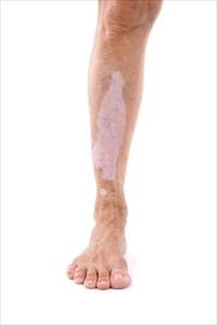 Defining Vitiligo Its Types Symptoms And Treatment Procedures