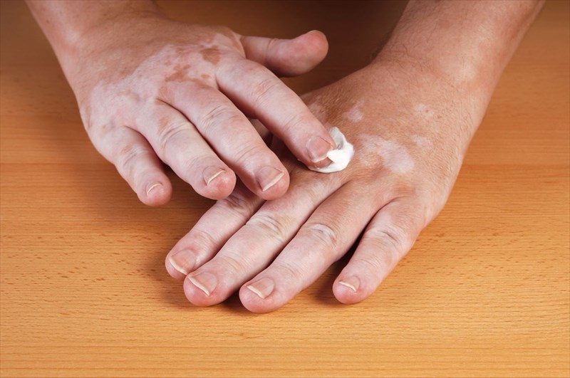 How is vitiligo treated?