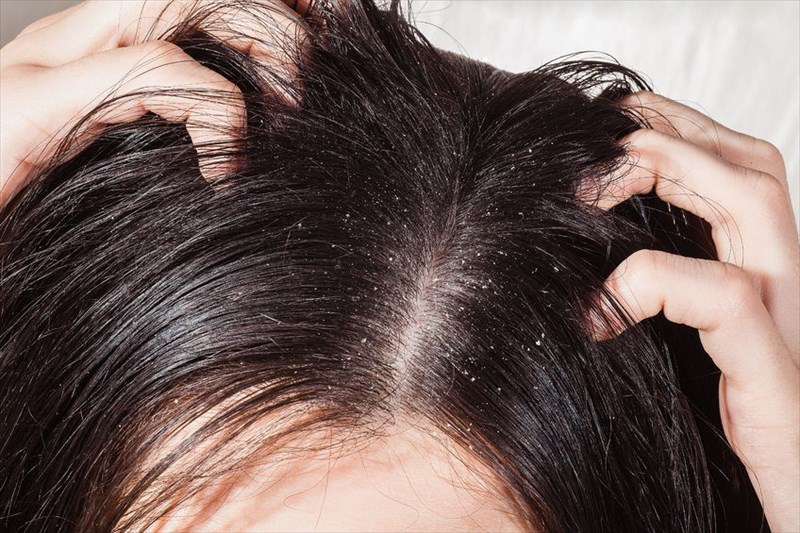 Defining dandruff, its potential causes and treatment options