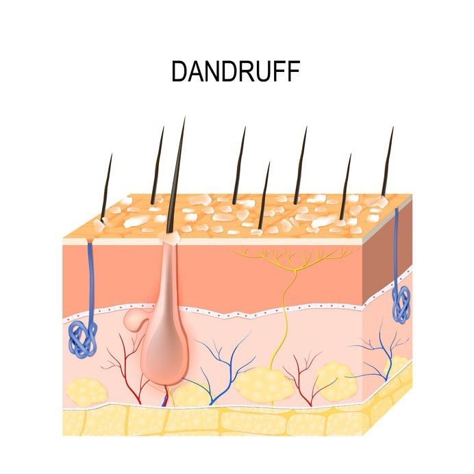 dandruff: causal associations  mymed.com