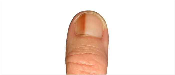 Other nail conditions