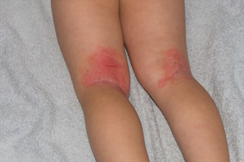 Cutaneous Candidiasis Candida Skin Infection
