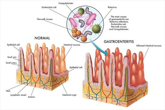 gastroenteritis (the stomach flu) - its causes, diagnosis and, Skeleton