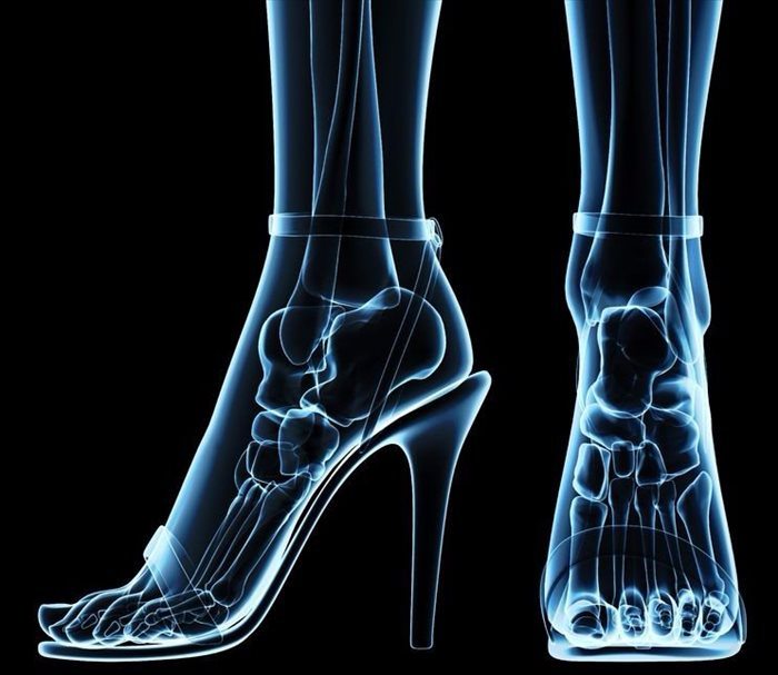 Röntgenbild des Fußes in Absatzschuhen