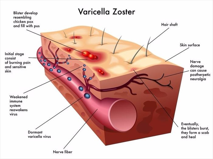 an analysis of the symptoms and treatment of chickenpox a disease caused by the varicella virus It is now known that they are both caused by a single virus of the herpes family treatment for chickenpox the varicella (chicken pox.